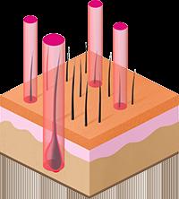 воздействие лазером на волосяной покров целевой области