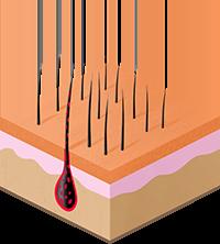 воздействие на меланин и повышение температуры фолликула