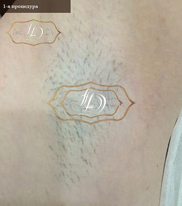 как выглядит лазер для эпиляции