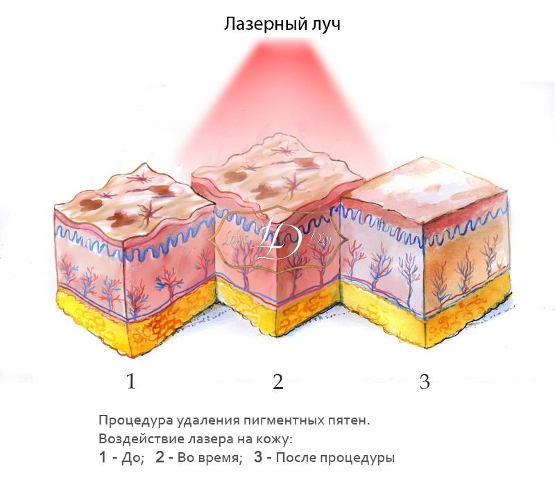 Этапы удаления пигментного пятна лазером